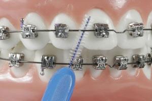 رعایت بهداشت دهان و دندان در ارتودنسی