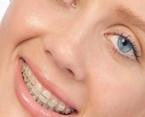 فواید درمان ارتودنسی