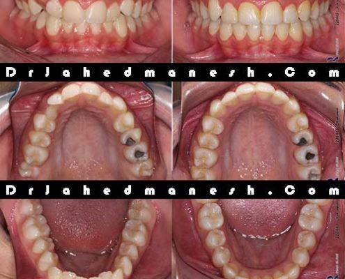 نهفتگی دندان عقل