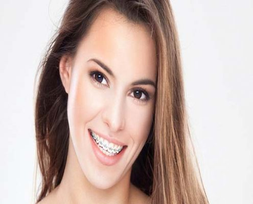 عوارض جانبی درمان ارتودنسی