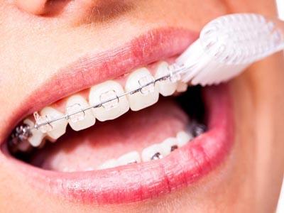 رعایت بهداشت دهان و دندان در حین ارتودنسی