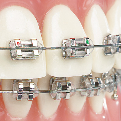 ارتودنسی دندانها
