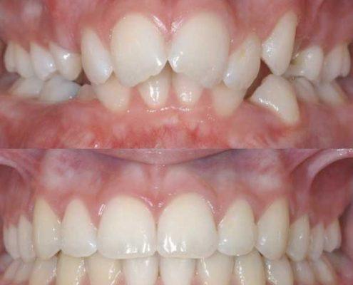 مرتب کردن دندان ها با استفاده از ارتودنسی